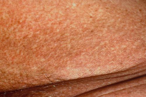 Лечение парапсориаза в москве