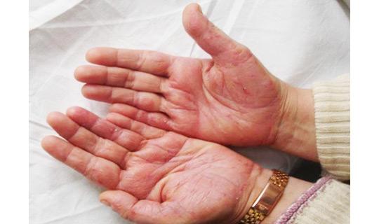 Дермалайт отзывы по лечению псориаза