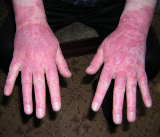 Лечение Псориаза В Иркутске
