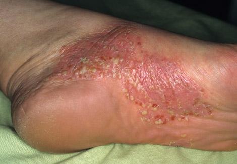 Диф диагностика экземы и псориаза - Псориаз