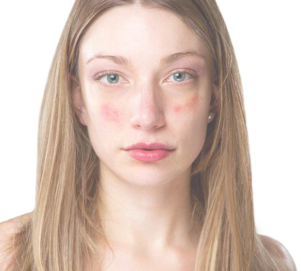 Лечение себорейный псориаз на лице