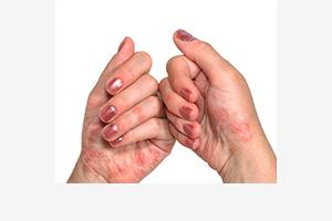 Псориаз на ногах причины диагностика лечение - Забота о ножках
