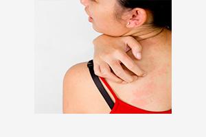 Лечение каплевидного псориаза