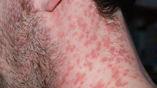 Симптомы псориаза фото признаки и способы лечения