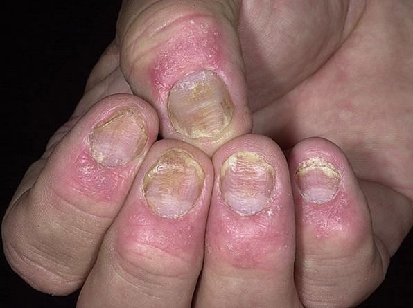 psoriasis-nails-symptoms-1