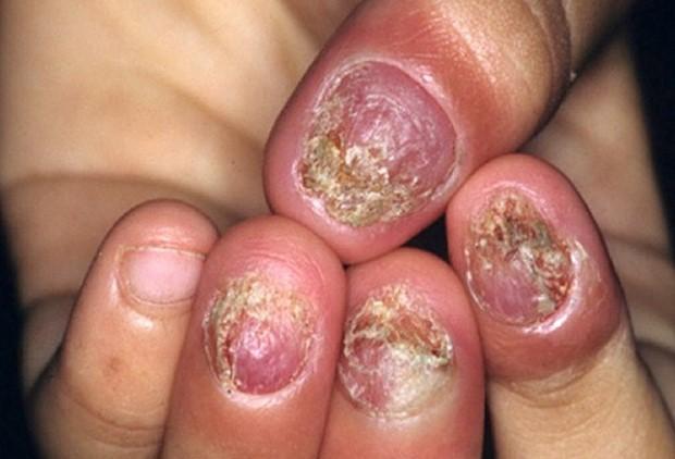 psoriasis-nails-symptoms-3