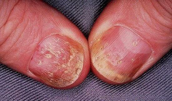 psoriasis-nails-symptoms-4
