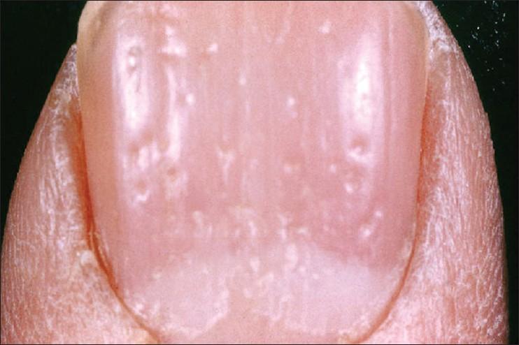 заболевания пальцев ног ногтей фото