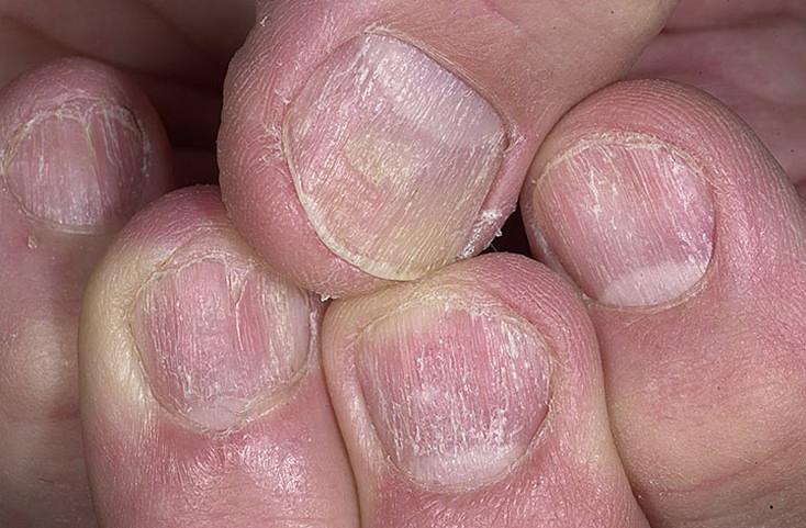 Можно ли лечить грибок стопы яблочным уксусом