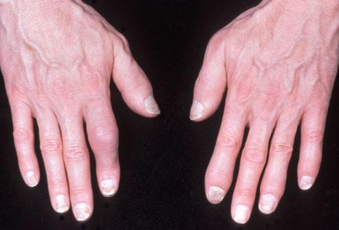 psoriasis-start-arthritis-1