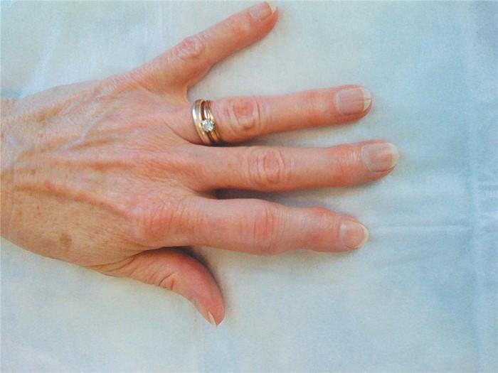 psoriasis-start-arthritis-4