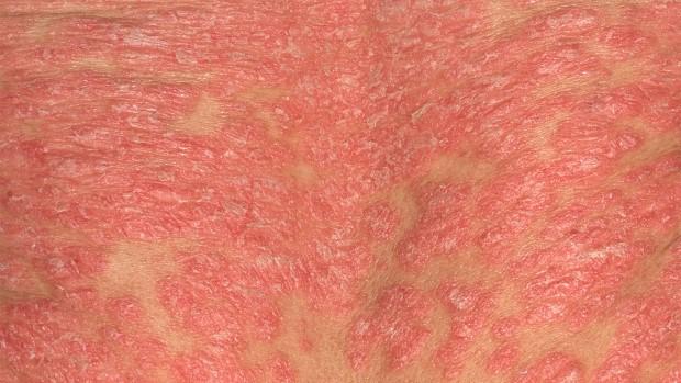 psoriasis-start-eritrodermia-1