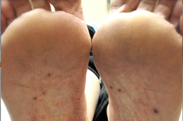 psoriasis-start-pustular-1