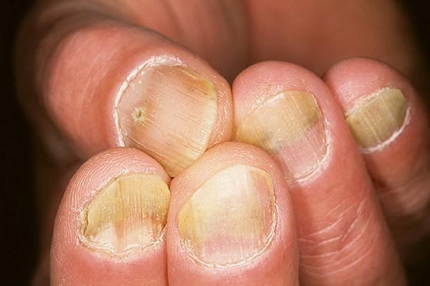 Появились на ногах пятна или грибок