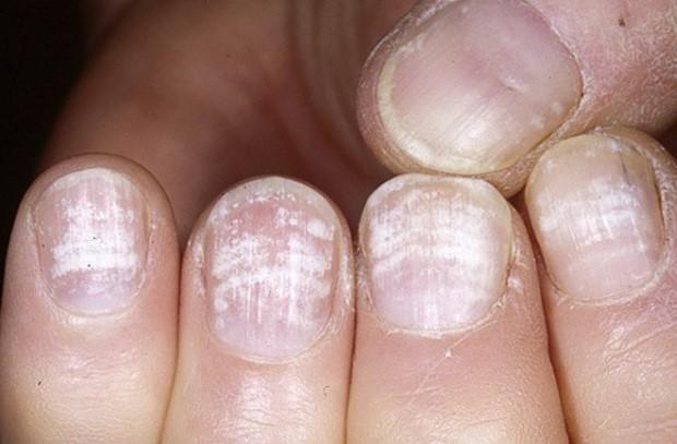 Псориаз ногтей симптомы