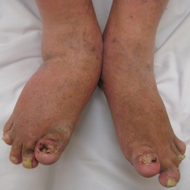 psoriasis-types-arthritis-2
