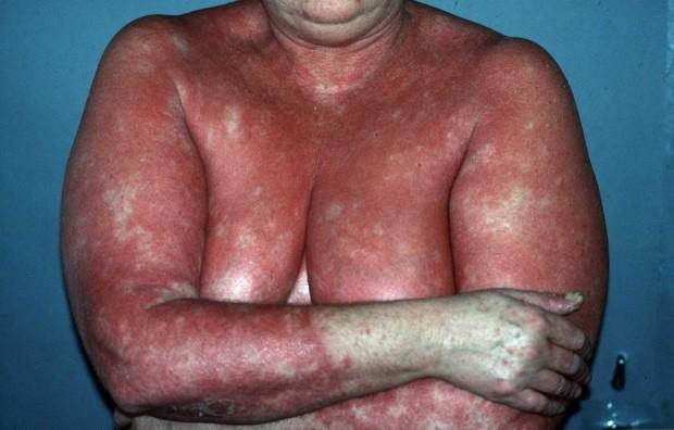 psoriasis-types-erythrodermic-2