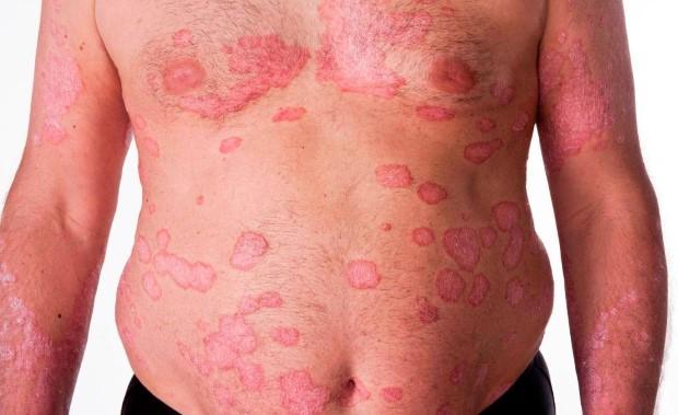 psoriasis-types-vulgaris-1