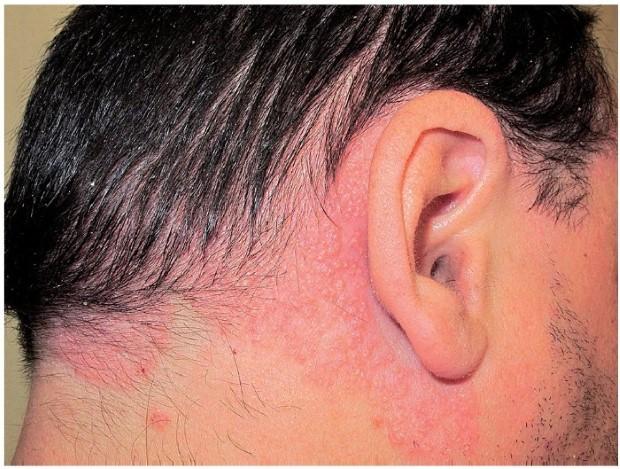 psoriasis-types-vulgaris-2
