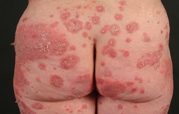 Псориаз на теле фото причины лечение диагностика