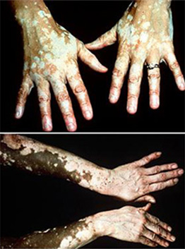 vitiligo-stages-10