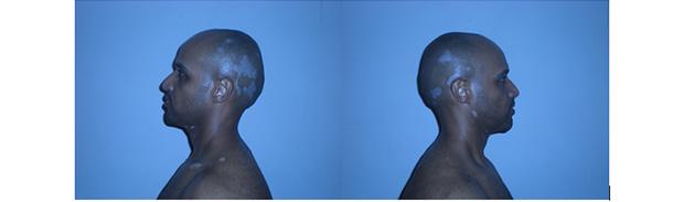 vitiligo-stories-gary-2