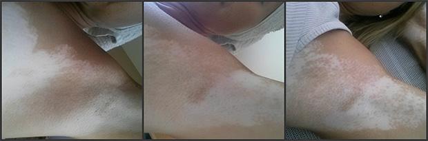 vitiligo-stories-melinda-2