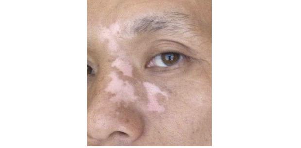 vitiligo-stories-xichao-1