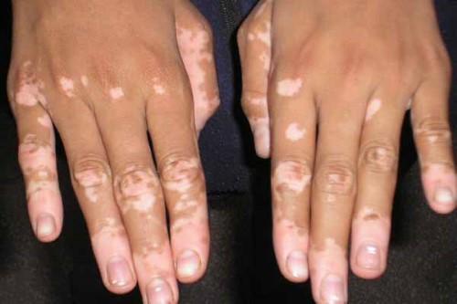 vitiligo-types-acrofac