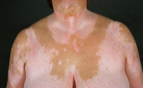 vitiligo-types-universal