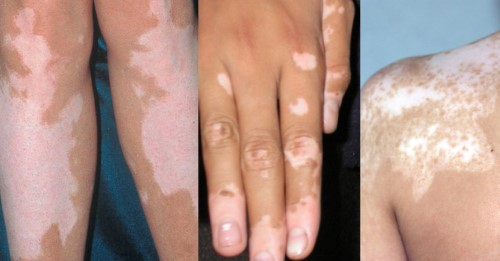 vitiligo-types-vulgaris