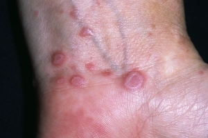psoriasis-diagnostika-lishai
