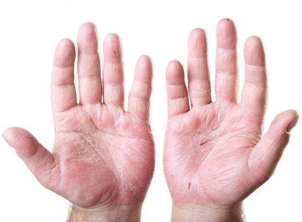 psoriasis-hands-symptoms-2
