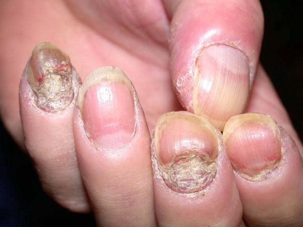 psoriasis-hands-symptoms-3