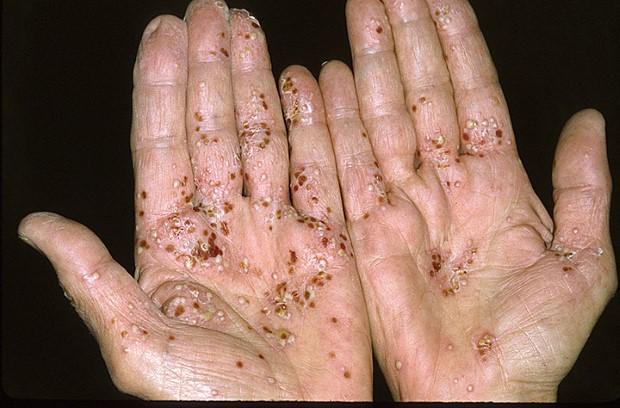 psoriasis-hands-symptoms-4