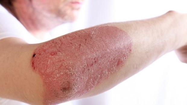 psoriasis-hands-symptoms-5