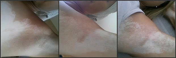 vitiligo-stories-melinda-2